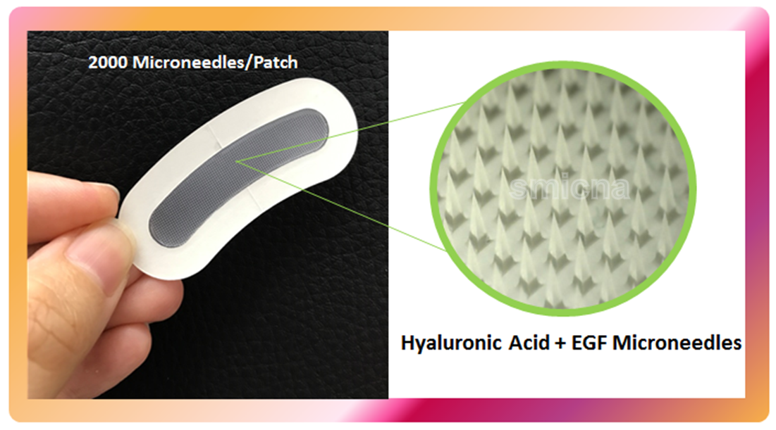 microneedles patch